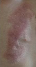 Tratamiento para las estrias en la piel - Biodermogenesi - Dr Lezama-14_1