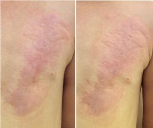 Tratamiento para las estrias en la piel - Biodermogenesi - Dr Lezama-14_2-3