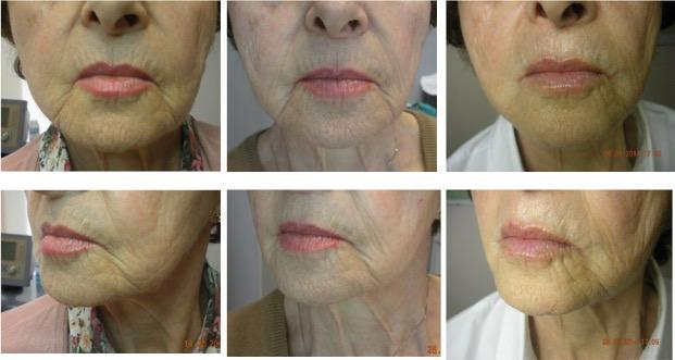 Tratamiento para las estrias en la piel - Biodermogenesi - Dr Lezama-20
