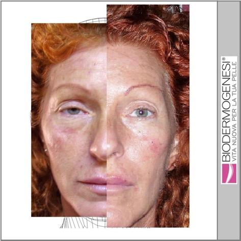 Tratamiento para las estrias en la piel - Biodermogenesi - Dr Lezama-21