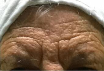 Tratamiento para las estrias en la piel - Biodermogenesi - Dr Lezama-22
