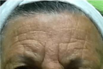 Tratamiento para las estrias en la piel - Biodermogenesi - Dr Lezama-22_1