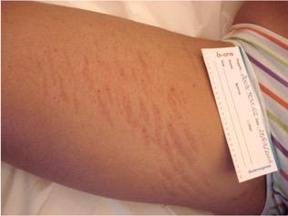 Tratamiento para las estrias en la piel - Biodermogenesi - Dr Lezama-2_antes