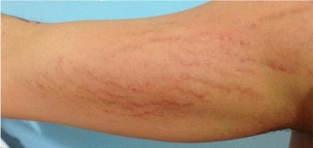 Tratamiento para las estrias en la piel - Biodermogenesi - Dr Lezama-3