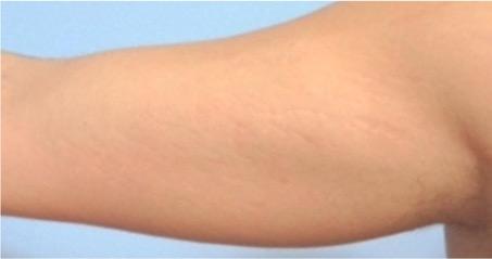 Tratamiento para las estrias en la piel - Biodermogenesi - Dr Lezama-3_resultado