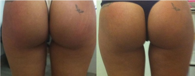 Tratamiento para las estrias en la piel - Biodermogenesi - Dr Lezama-5