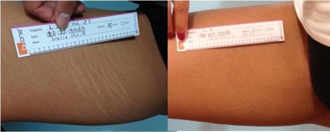 Tratamiento para las estrias en la piel - Biodermogenesi - Dr Lezama-6