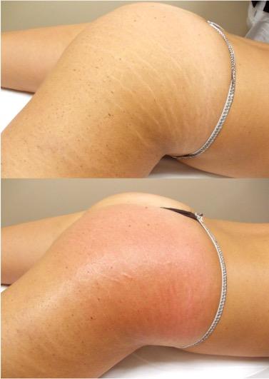 Tratamiento para las estrias en la piel - Biodermogenesi - Dr Lezama-7