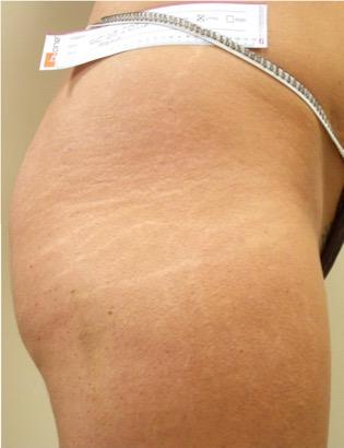 Tratamiento para las estrias en la piel - Biodermogenesi - Dr Lezama-9