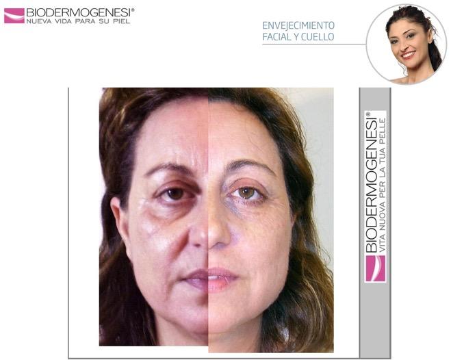 envejecimiento facial y cuello3